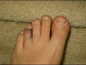 pie dedo roto